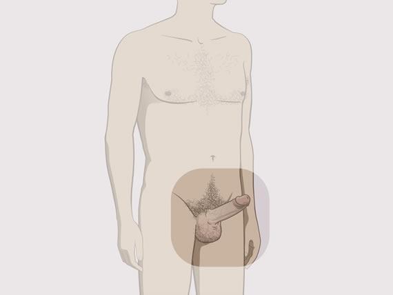 avantaj penis ce este acolo pentru o erecție permanentă