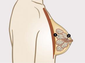 Parts of a breast on the inside are: 1. mammary glands, 2. ducts.