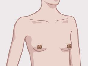 Przykład piersi: małe i spiczaste piersi