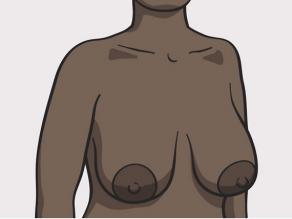 Different breasts: large breasts
