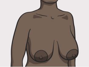 Przykład piersi: duże piersi