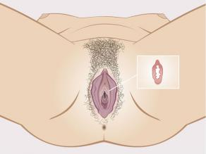Detail of the hymen inside the vagina: a supple rim of tissue. The hymen is not a membrane that closes off the vagina.
