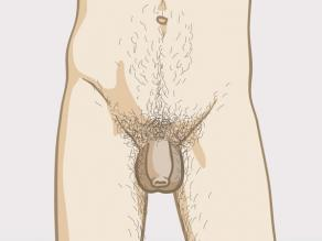 Différents pénis: exemple1