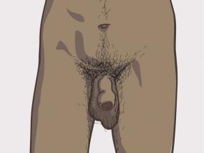 آلت های تناسلی مردانه متفاوت: نمونه 3