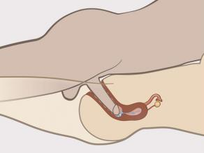 Detail of the penis inside the vagina seen from the inside. Semen is leaving the penis and entering the uterus.