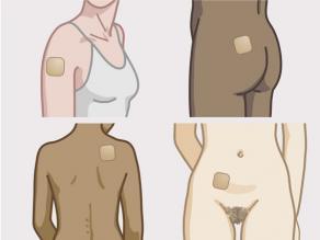 Kleben Sie sich das Pflaster auf den Bauch, die Gesäßhälfte, den Rücken, das Schulterblatt oder die Außenseite des Oberarms auf die trockene, saubere Haut.