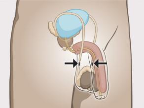 Sterilization for men: the sperm ducts are blocked.