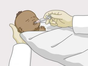 The baby is given medicines after birth.