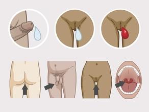 Besmet sperma, vaginaal vocht en bloed van de menstruatie van mensen die besmet zijn met hiv kunnen uw lichaam binnenkomen langs het slijmvlies van de aars, eikel van de penis, vagina en mond.