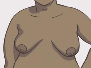 Przykład piersi: średniej wielkości piersi, w kształcie gruszek (nieznacznie owalne)