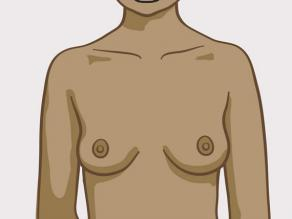 Przykład piersi: średniej wielkości piersi, okrągłe