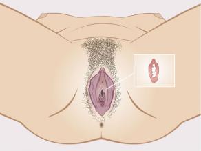 Darstellung des Jungfernhäutchens in der Scheide im Detail: ein weicher Gewebekranz. Das Jungfernhäutchen ist keine Membran, die die Scheide abschließt.