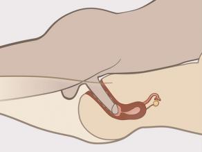 İçeriden görülebilen vajinanın içindeki penis detayı.